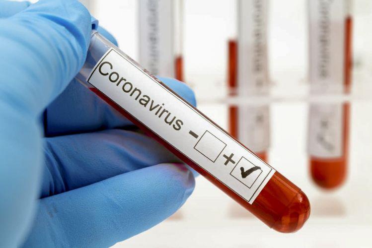 COVID-19 virusu Türkiyədə daha 137 nəfərin ölümünə səbəb olub